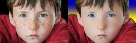 Freckles before and after
